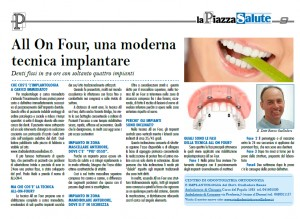 ALL ON FOUR DENTI FISSI IN 24 ORE